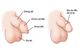 [ Cắt bao quy đầu để làm gì ? ] 8 Lợi ích khi cắt bao quy đầu