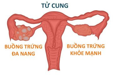Top 7 Thông tin quan trọng về bệnh đa nang buồng trứng