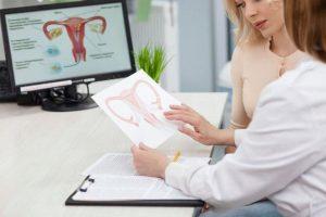 Cách điều trị u nang buồng trứng