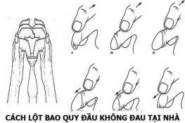 Cách chữa hẹp bao quy đầu tại nhà bằng tay ( có minh họa ) !