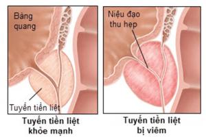 Nguyên nhân viêm tuyến tiền liệt