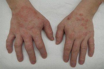 [ Viêm da cơ địa ở tay là bệnh gì ? ] phải làm sao , cách chữa